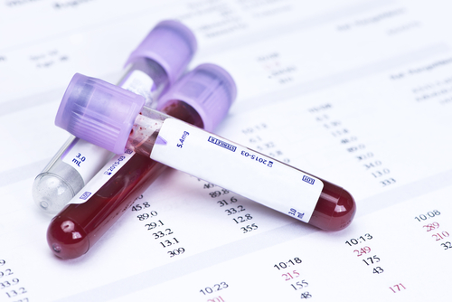 blood sample in test tube vials for blood sugar testing