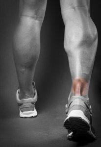 Achilles Tendinitis, man with sore achilles tendon