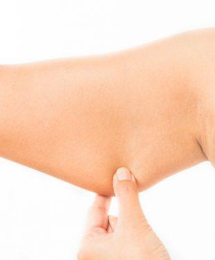 woman pinching arm fat