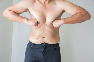 man with Gynecomastia to learn about testosterone increase from Progentra