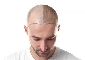 Answers To Common Questions About Hair Loss In Men